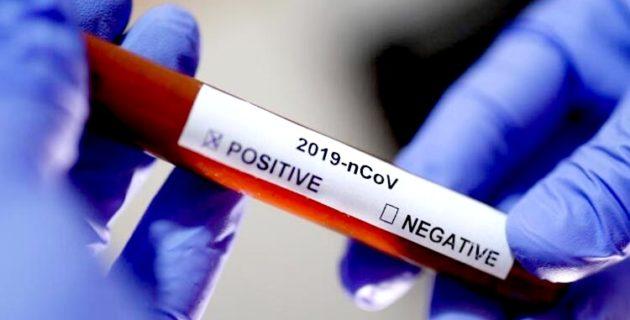 Neden koronavirüs kapan herkes hasta olmuyor?